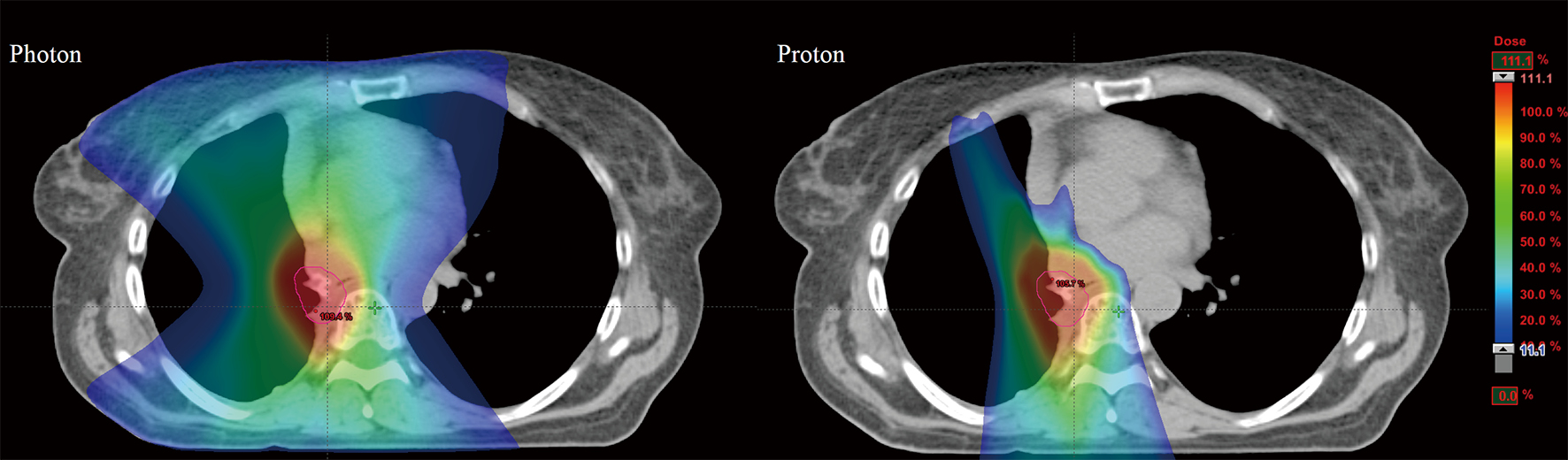 Advances In Radiotherapy Techniques And Delivery For Non